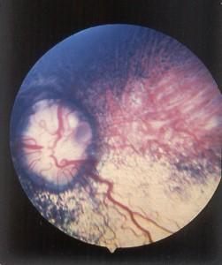 Choroidal hypoplasia with optic nerve coloboma.
